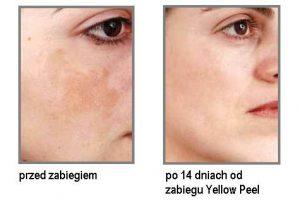 yellow peel efekt po zabiegu