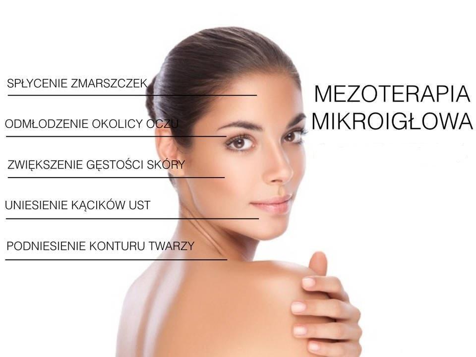 mezoterapia mikroigłowa zdjęcie do oferty